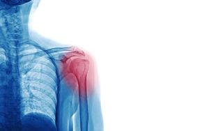 Shoulder Reconstruction Surgery